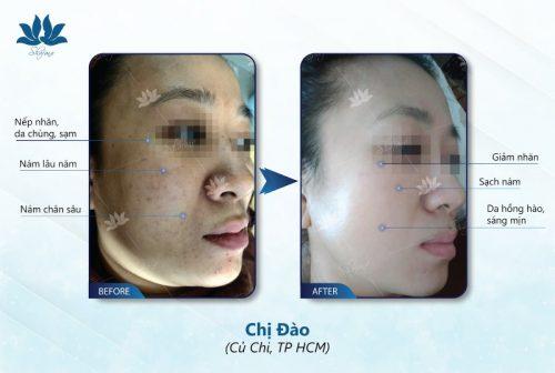 Super Detosy Shafana 10ml là dòng sản phẩm có tác dụng đào thải độc tố và tái tạo làn da